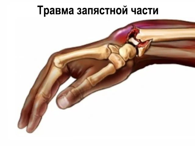 fájdalomtörés a könyökízületben