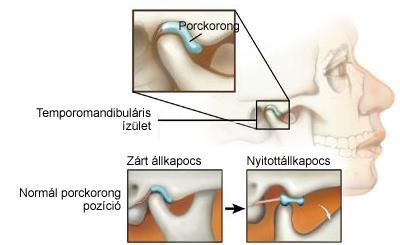 metacarpalis phalangeális ízületek