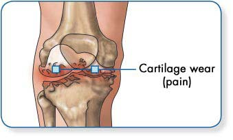 hogyan kell kezelni a csuklóízület osteoarthrosisát)