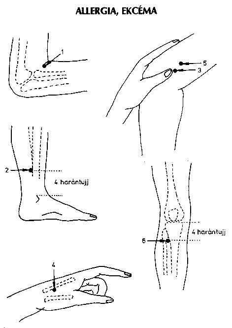 hogyan kezeljük a bokaízületet feszültség alatt csípőgyulladás jelei