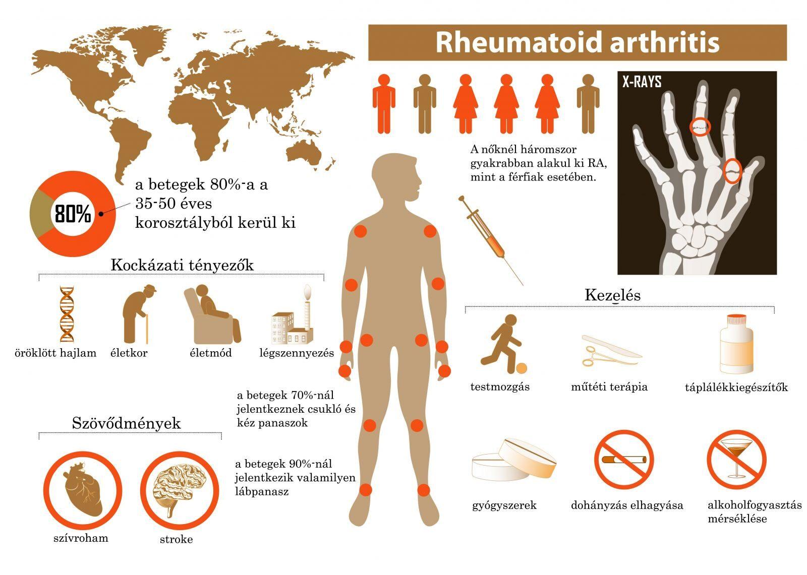 hogyan kezeljük az artritisz keféket gerinc artrózis tünetek kezelése