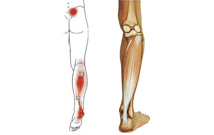 Csípőbetegség, mint kezelni, A csípőízületi kopás jellegzetes tünetei