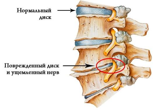rheumatoid arthritis folyadék az ízületekben térdfájdalom onkológia