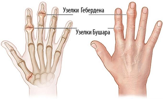 mi a különbség az ízületi gyulladás és a könyökízület artrózisa között melyik gyógyszer csökkenti az ízületi fájdalmakat