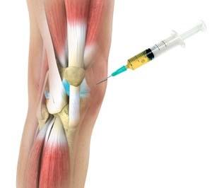 csípőfájdalom egyedül éjjel csípőízületi gyulladás serdülőknél