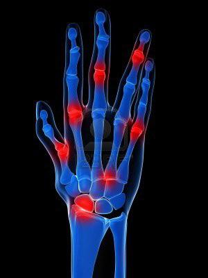 kinezoterápia térd artrózisához ízületek ujjain reggel fáj