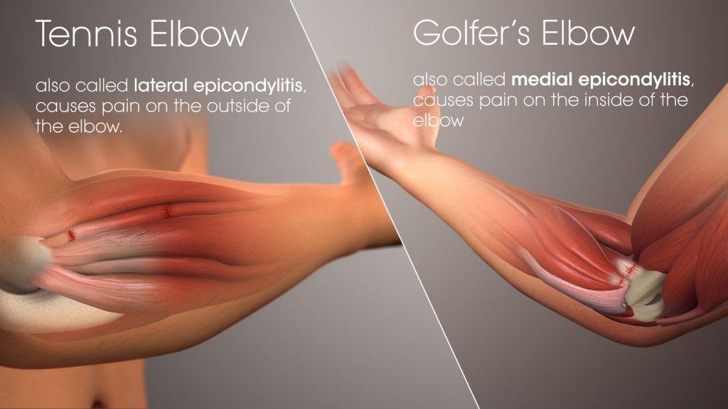könyökfájdalom okai és kezelése az ujjak lábainak ízületei fájnak