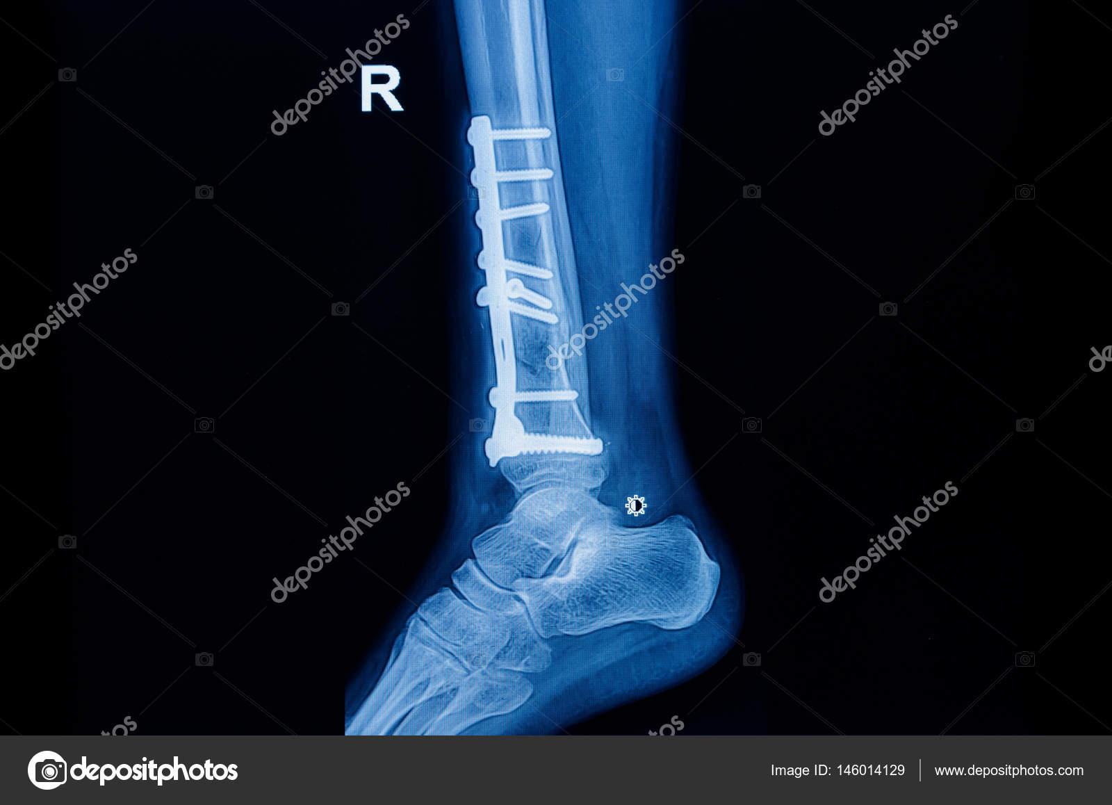 kórtörténet boka törése a lábujjízület fájdalma okoz
