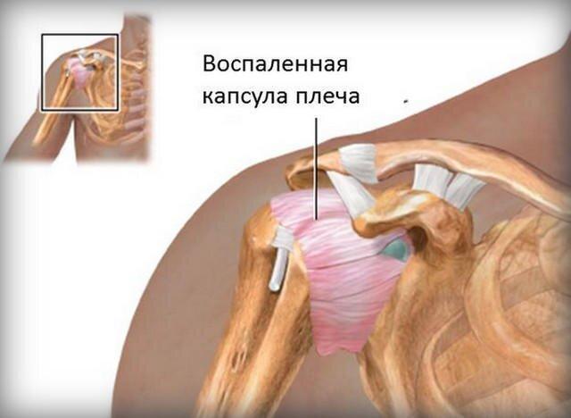 csípőízület artrózisának kezelése 4 fokkal karipain kenőcs ízületekre