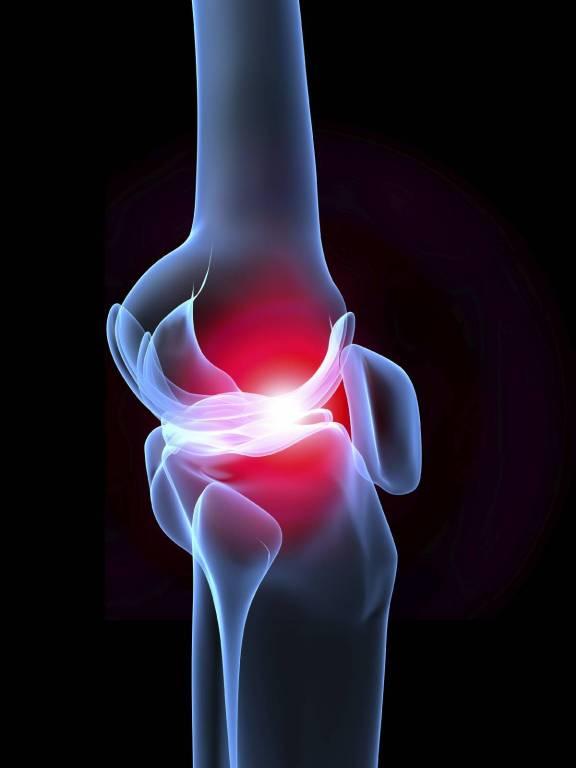 a térdízület 2. fokú ízületi gyulladása a láb ízületei az artritisz kezelésére