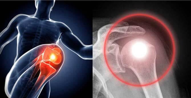 hogyan lehet kezelni a jersiniózisos ízületi gyulladást hirtelen fájdalom a hüvelykujj ízületeiben