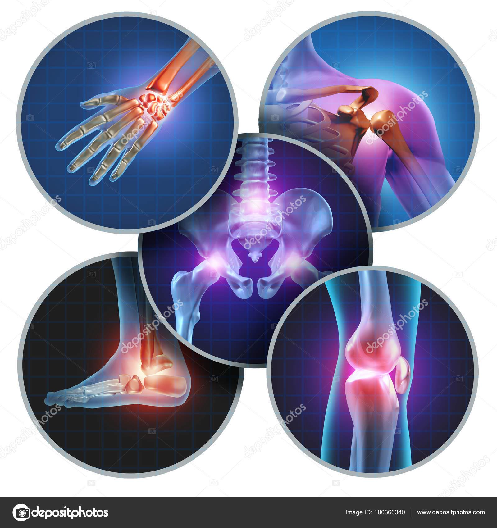 polyarthritis ízületek kenőcskezelése ízületi fájdalom teszt