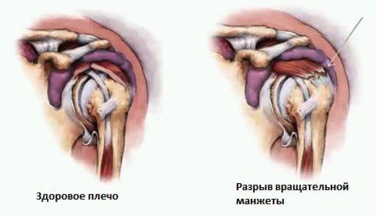 kezelje az ízületeket fenyőtűkkel amikor a séta fáj a csípőízületben