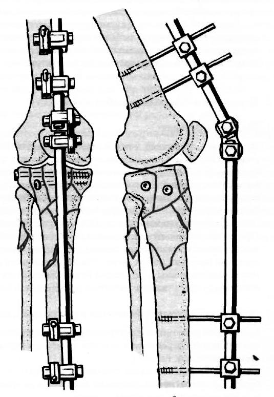 technika a gyógyszernek a térdízületbe történő injektálására kenőcsök térd artrózisához