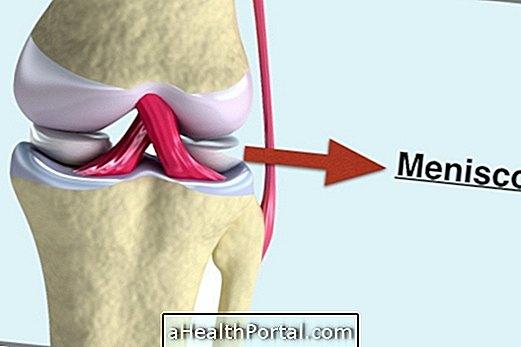 izületi problémák lelki okai térdízületi kezelés meniszkusz deformációja