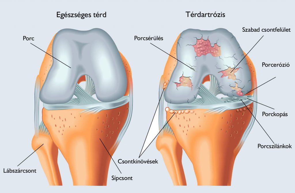 térdízület lóg a d-vitamin hiánya és ízületi fájdalmak