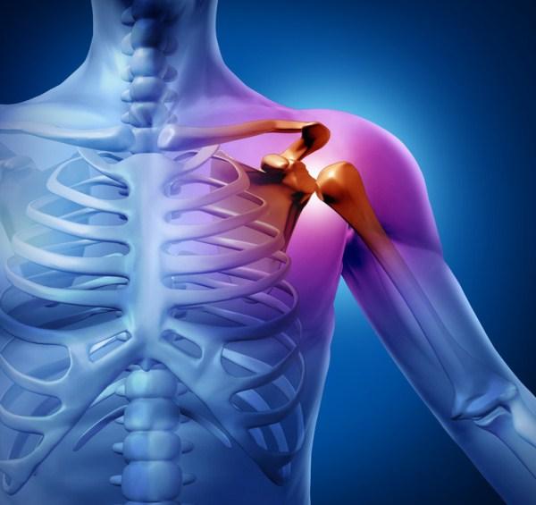 vállízület subacromialis artrózisa ízületi gyulladás okai és a kezelés időtartama