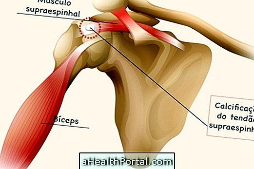 ízületi fájdalom artroplasztika után mi a teendő