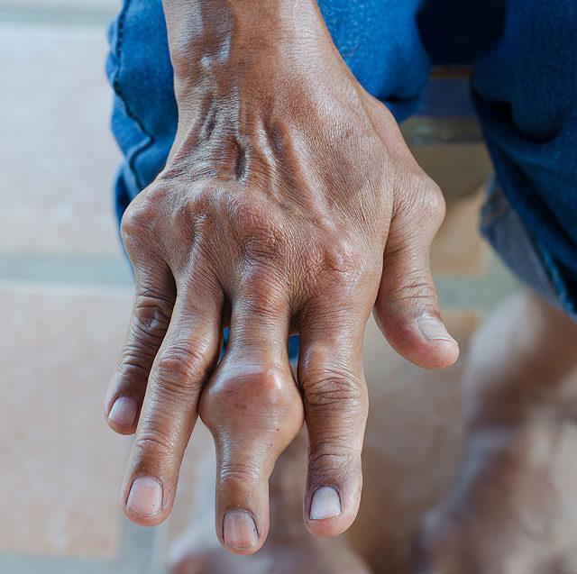 ízületi gyulladás a lábon amely károsítja az ízületeket