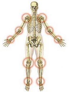 gyógyszerértékelések ízületi fájdalmak miatt