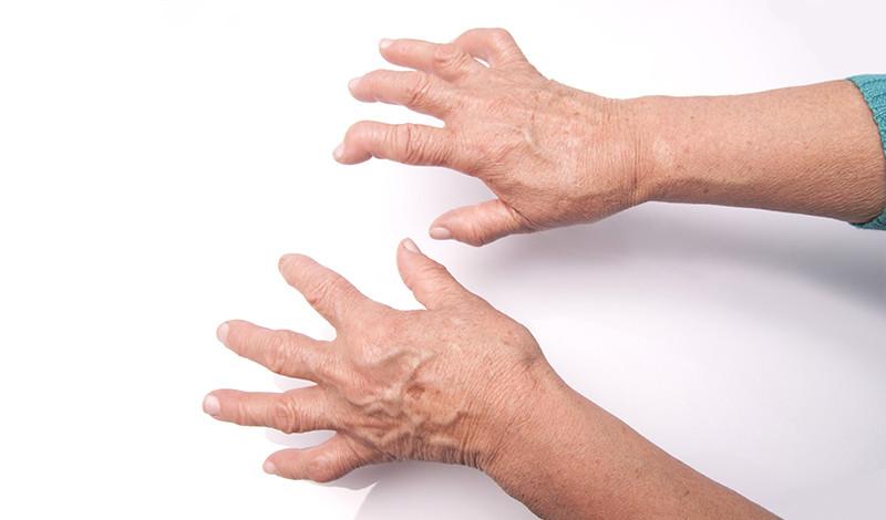 ízületi kezelés kéz sérülés után térdízületi sprain