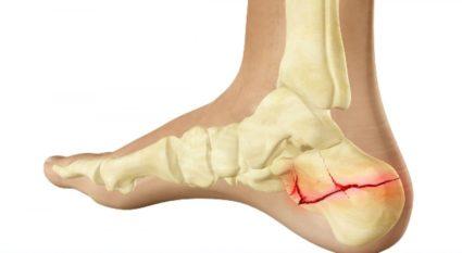 a jobb térdízület deformáló artrózisa)