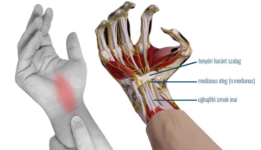 fájdalom a kéz ízületeiben hogyan lehet gyógyítani