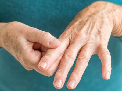 Izületi fájdalom, Változások a kéz ízületeiben ízületi gyulladás esetén