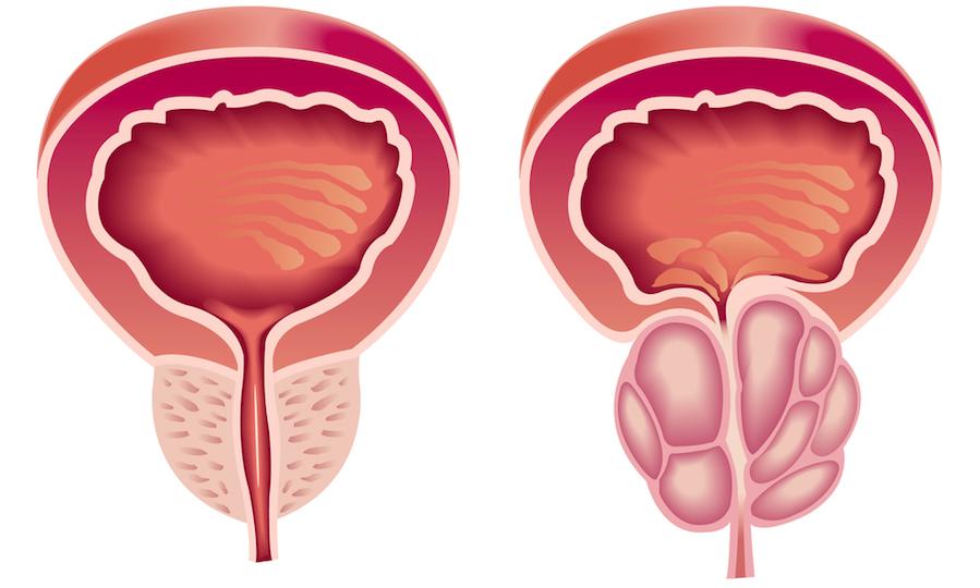 cancer de prostata diagnostico prosztata hiperplázia mi az