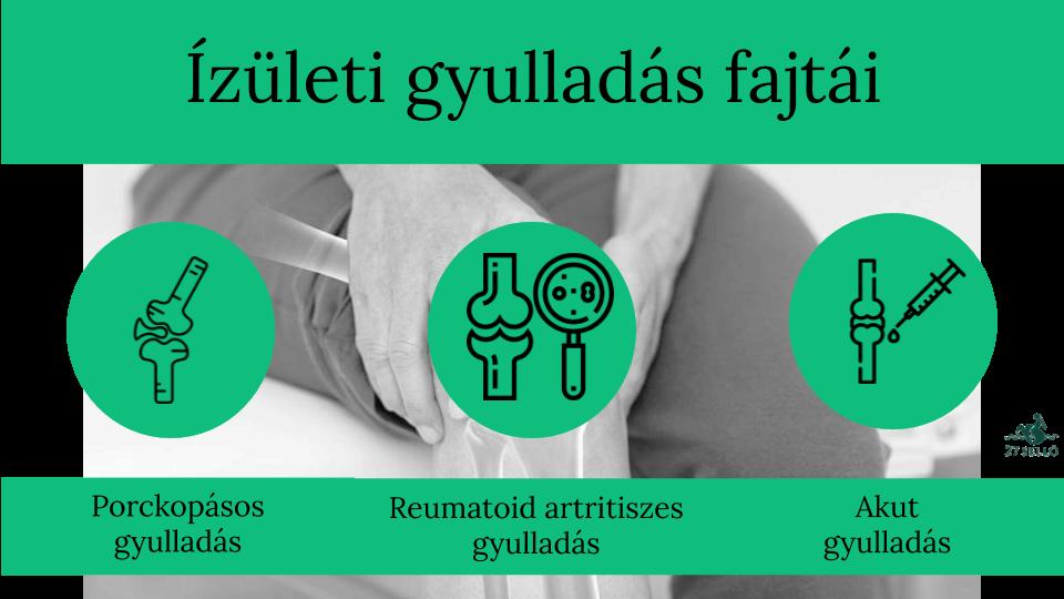 ízületi gyulladás onkológiában
