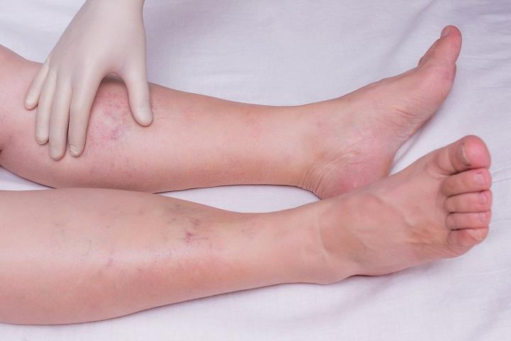 miért fáj a lábad milyen tabletták kezelik az ízületi gyulladást