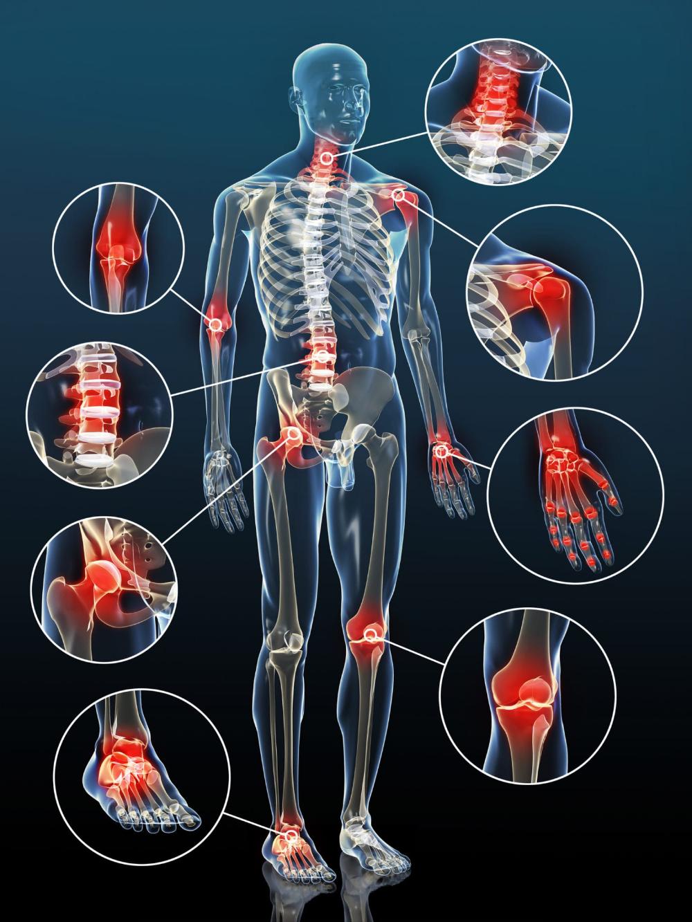 fájdalom a csípő dysplasiaban gyermekeknél kenőcsök térd artrózisához