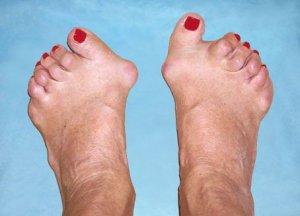 mi köze a láb ízületeinek gyulladásáig