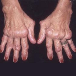 arthrosis reumatikus kezelés)