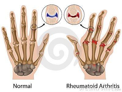 Minden ízület deformáló artrózisának kezelése