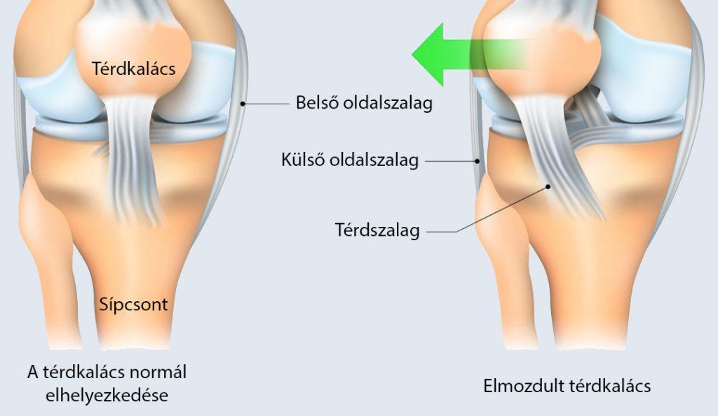 fájdalom a jobb térdben guggolva ízületi fájdalom és hőmérsékleti gyengeség