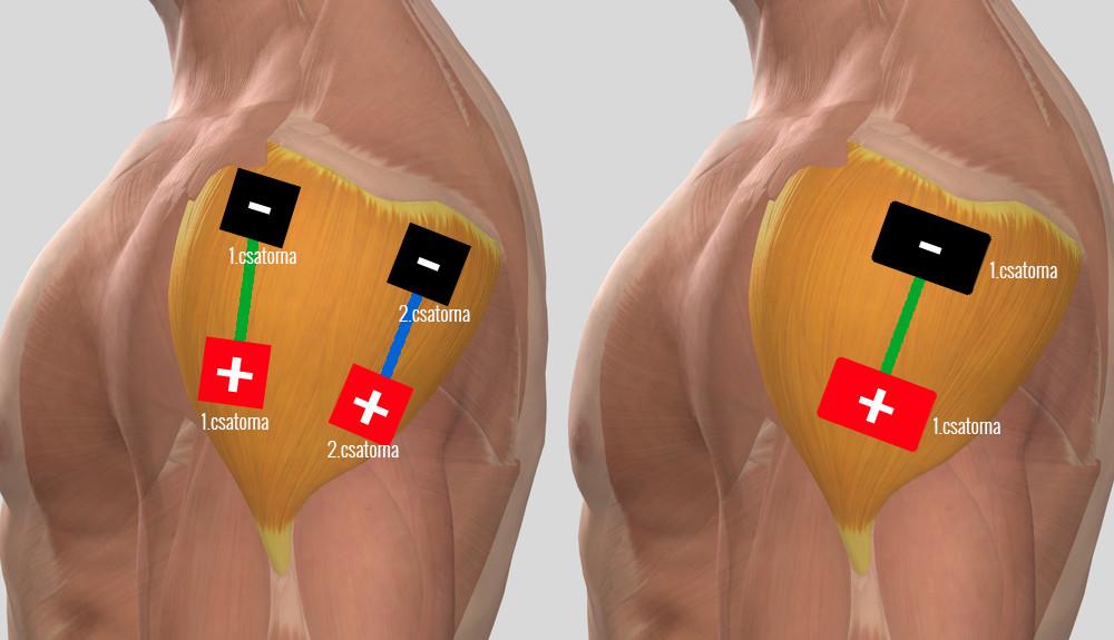 Vállízület artrózisának kezelése