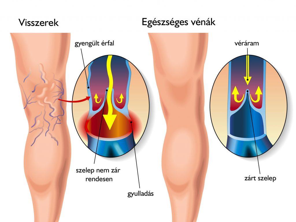 Térdízület kezelés periarthrosis