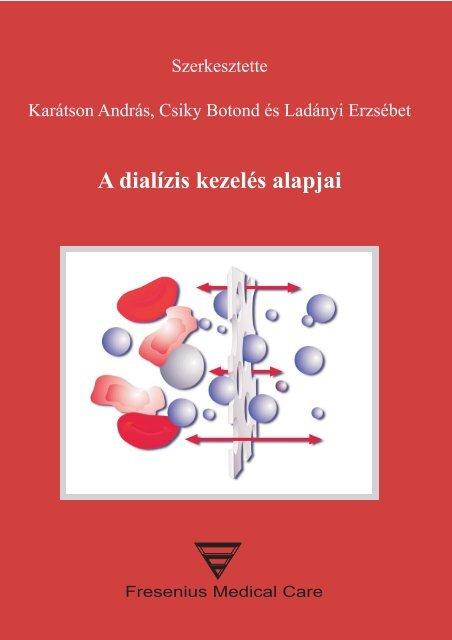 réz artrosis kezelés)