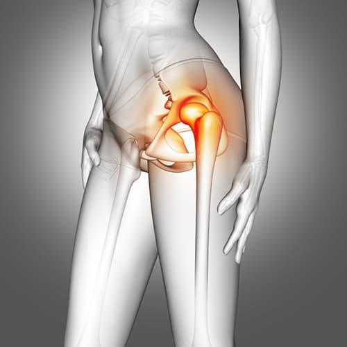 térd chlamydialis arthritis kezelése pmp térdkárosodás esetén