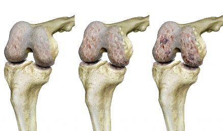 alternatív gyógyászat az artrózis kezelésében