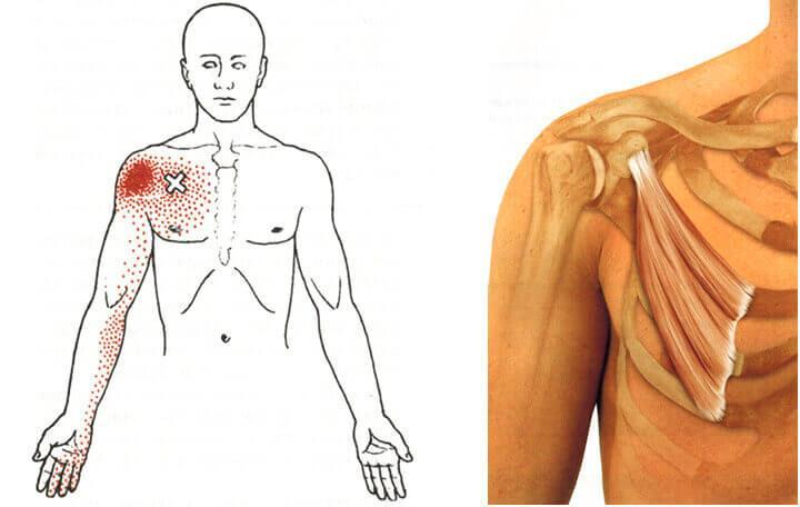 de shpa ízületi fájdalmak esetén a kéz interfalangeális ízületeinek ízületi kezelése
