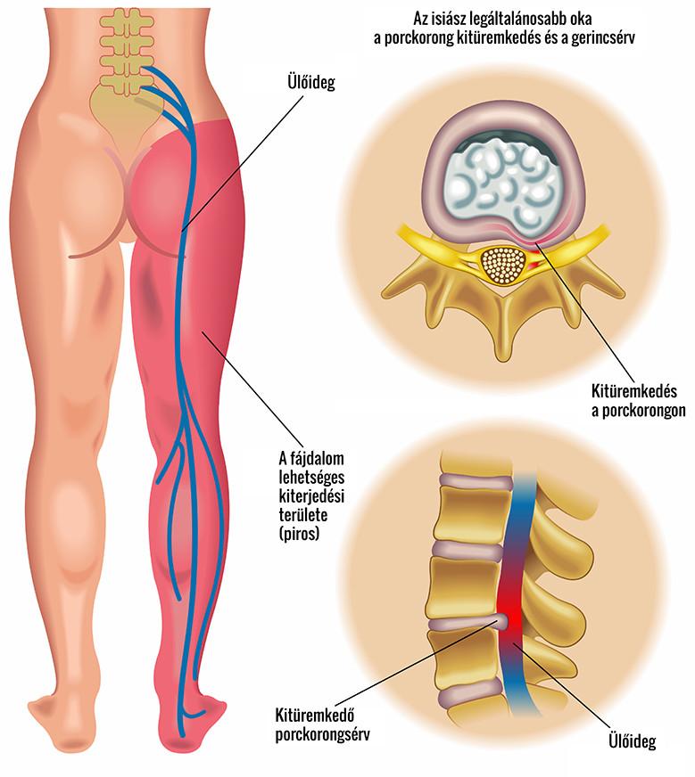 csípőfájdalom adódik a lábnak a térdízület meniszkuszának gyulladása 2 fokkal