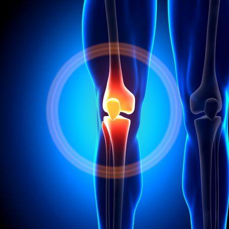 fájdalom a jobb térdben guggolva ízületi kenőcs típusok
