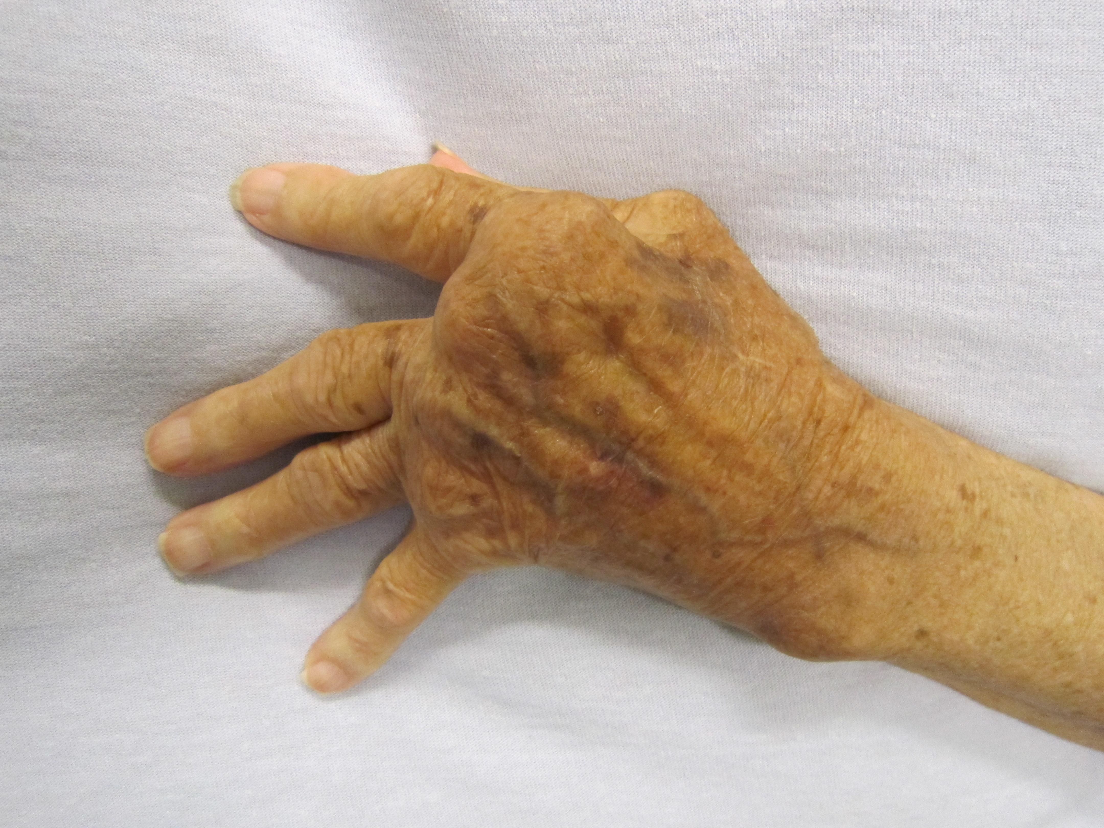 nem specifikus ízületi betegségek a könyök ízületének inak törése